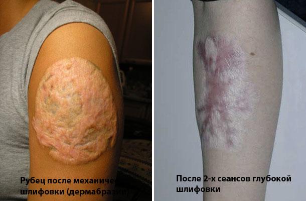Как убрать тату в домашних условиях без шрама видео - Mi-k.ru