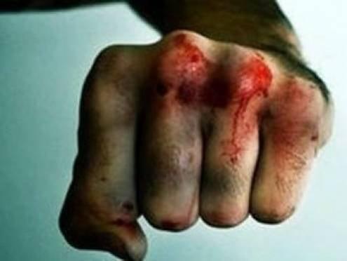 Житель Лямбиря сломал рёбра назойливому односельчанину