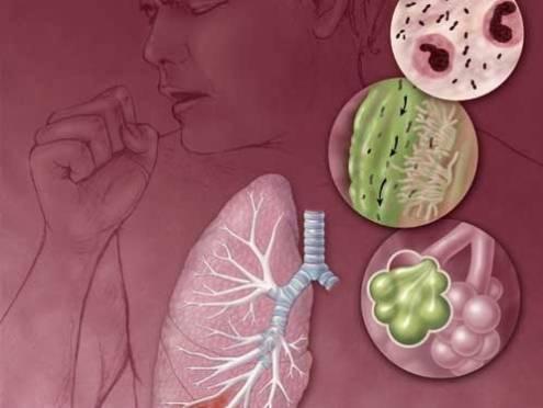 В Мордовии выросла смертность от пневмонии