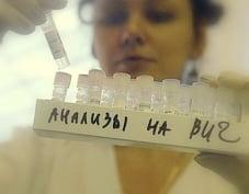 С начала года в Мордовии выявлено 96 больных ВИЧ-инфекцией