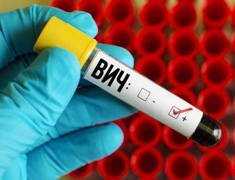В Мордовии ВИЧ-инфекция активно распространяется среди молодых