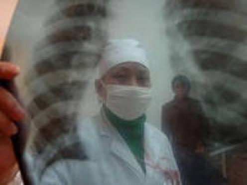 Больные туберкулезом в Мордовии не хотят лечиться