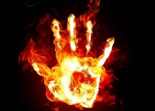 В Мордовии 9-летний мальчик доигрался с огнём до ожогов