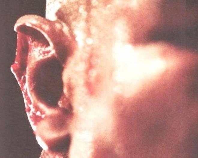 Житель Саранска осужден за откушенное ухо