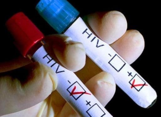 В России от новобрачных хотят требовать тестирования на ВИЧ