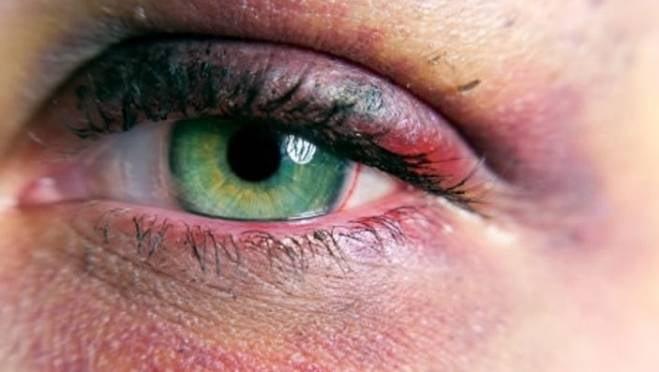 За подбитый левый глаз жительница Саранска получит 50 тысяч рублей