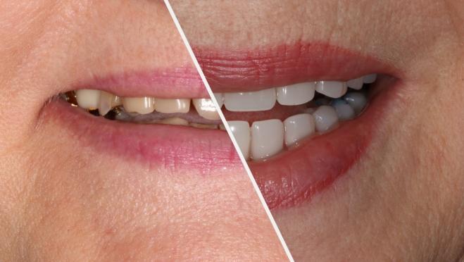 Новые зубы за 3 дня? Реально с базальной имплантацией!